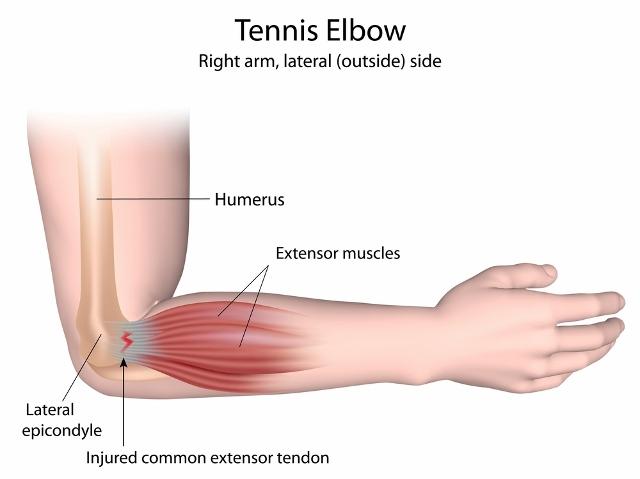 Tennis Elbow Uptodate
